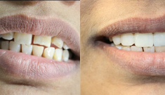 32pearls-cosmetic-dentistry-img02